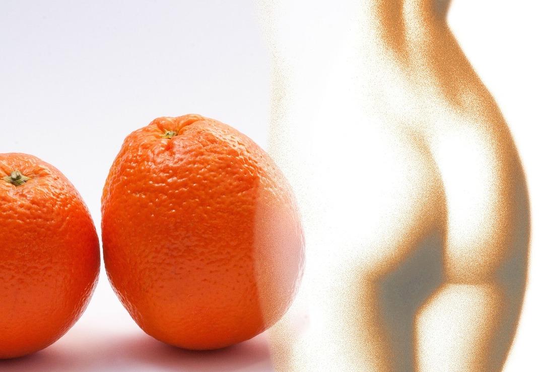 Целлюлит: эффективные методы против целлюлита